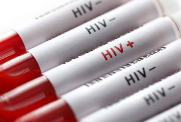Bị nhiễm HIV nếu không điều trị có thể sống được bao lâu?